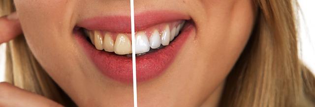 Zbog ovoga vam zubi propadaju iako ih redovno perete