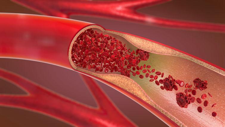 Njemački narodni lijek za čišćenje krvnih žila: Sprečava srčani i moždani udar i jača imunitet! (RECEPT)